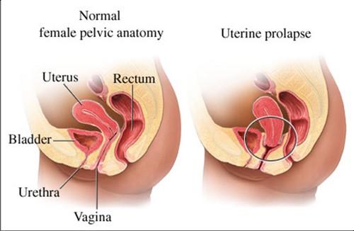pessarium bij verzakking